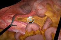 Appendectomy Simulation
