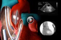 Port-access cardiac surgery