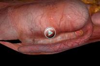 Appendix Adhesion Test
