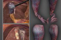 Laparoscopic Cholecystectomy