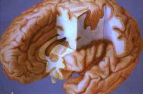 Brain Cut-away