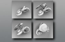 Middle and Inner Ear Anatomy
