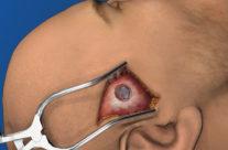 Temporal Burr hole – close up