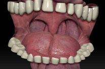 Mouth Texture Test